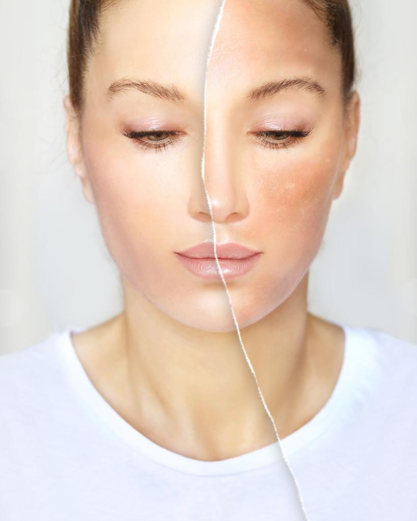 Eliminar taques de la cara